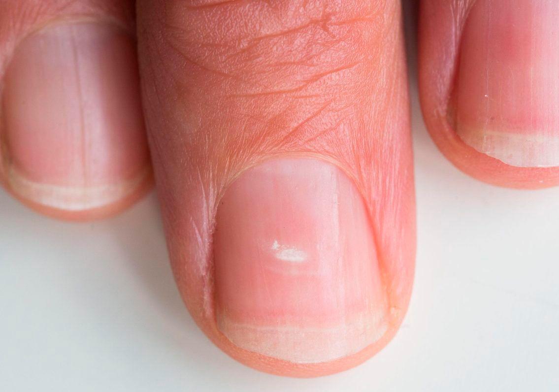 На ногтях белые пятна что это значит